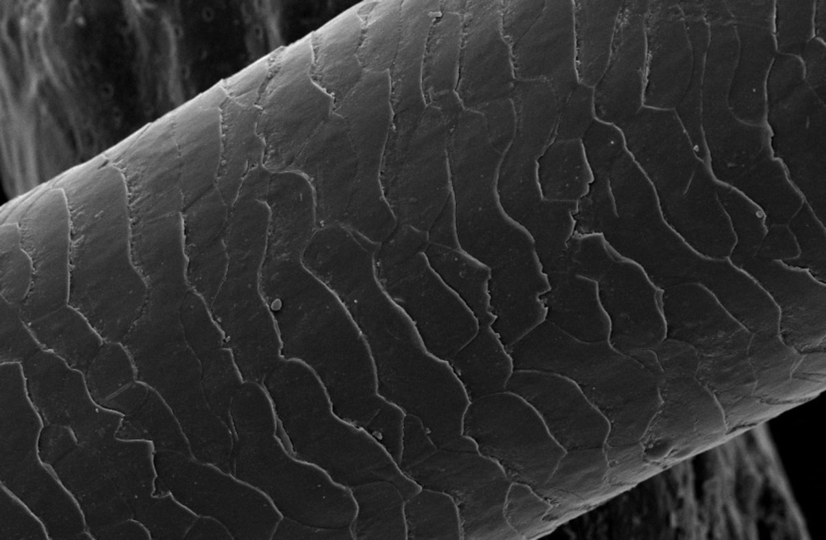 The scaly structure of a strand of hair as seen under an electron microscope.