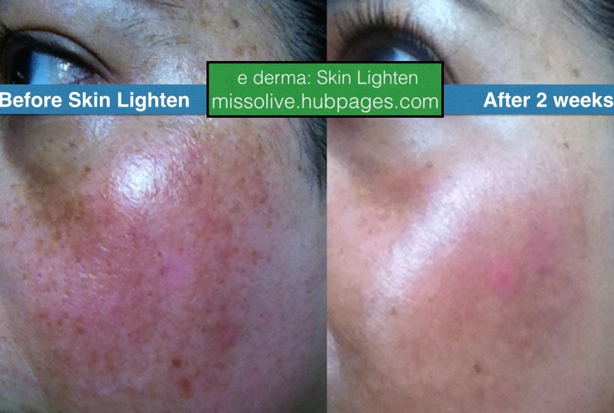 Left cheek: before and after using Skin Lighten by derma e for 2 weeks. Reviewer has reacurring melasma.