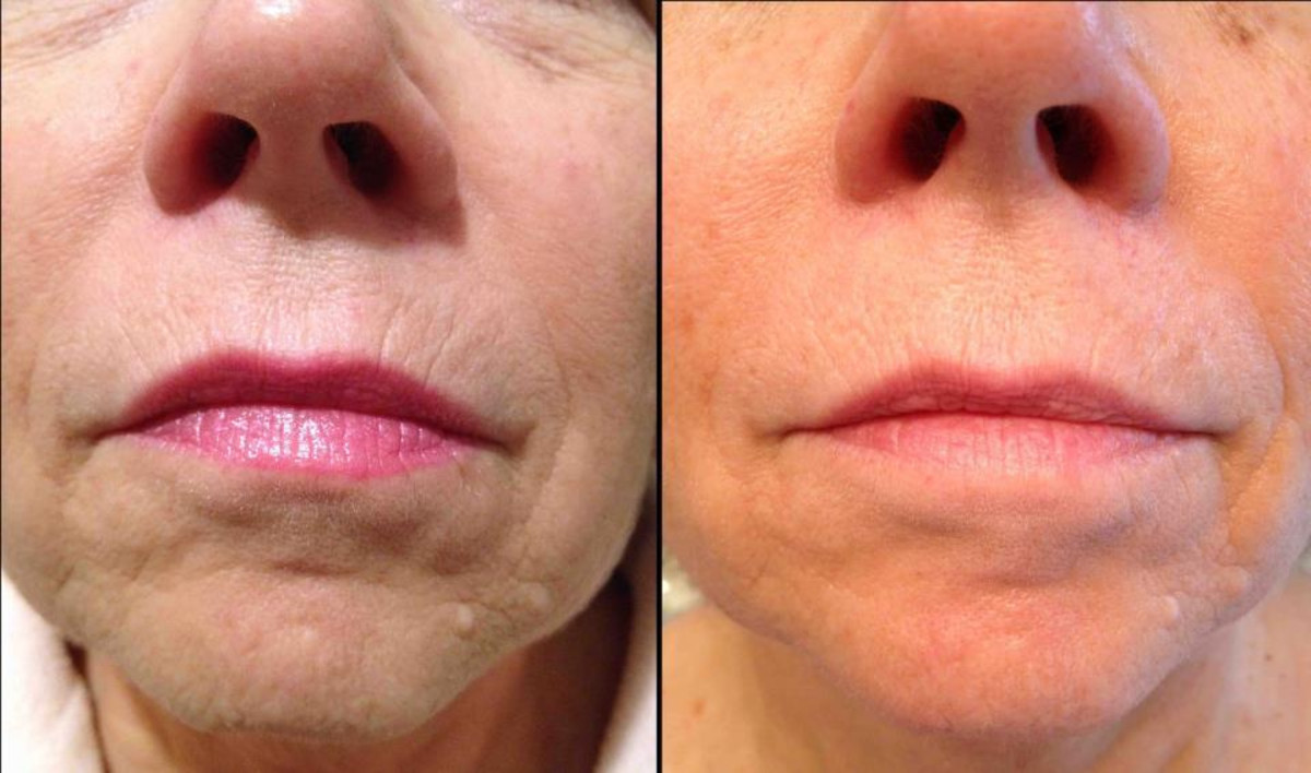 Reduced fine lines and wrinkles
