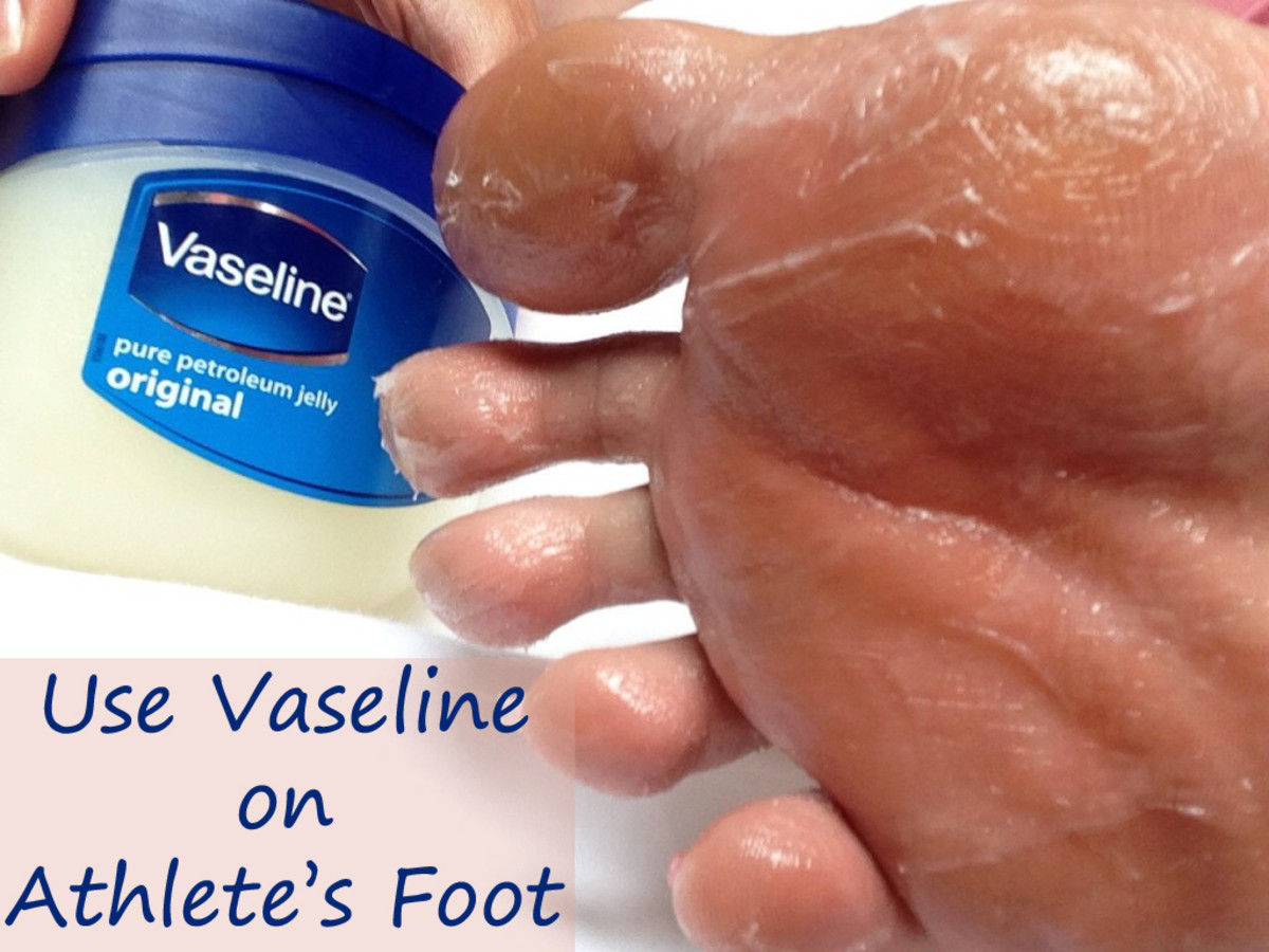 Vaseline for Athlete's Foot