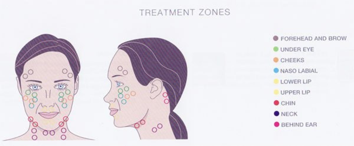 Facial Zones Diagram