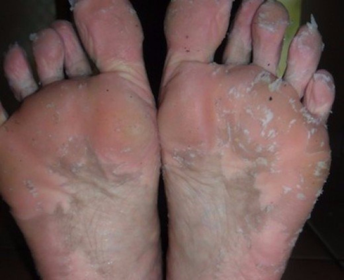 My feet peeling after using the homemade mixture.
