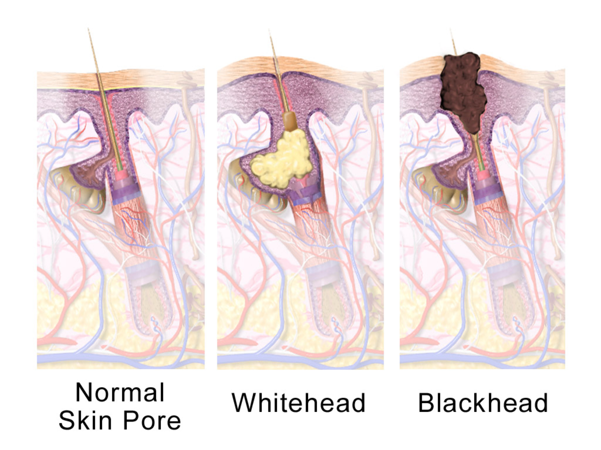 Whiteheads vs. Blackheads