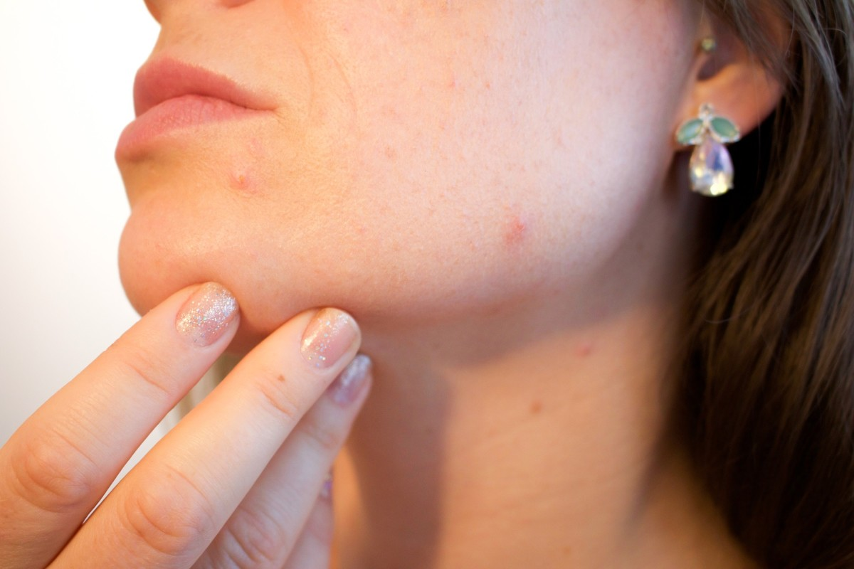 A pimple is usually a spot which has become infected, typically causing a reddened lump to appear.