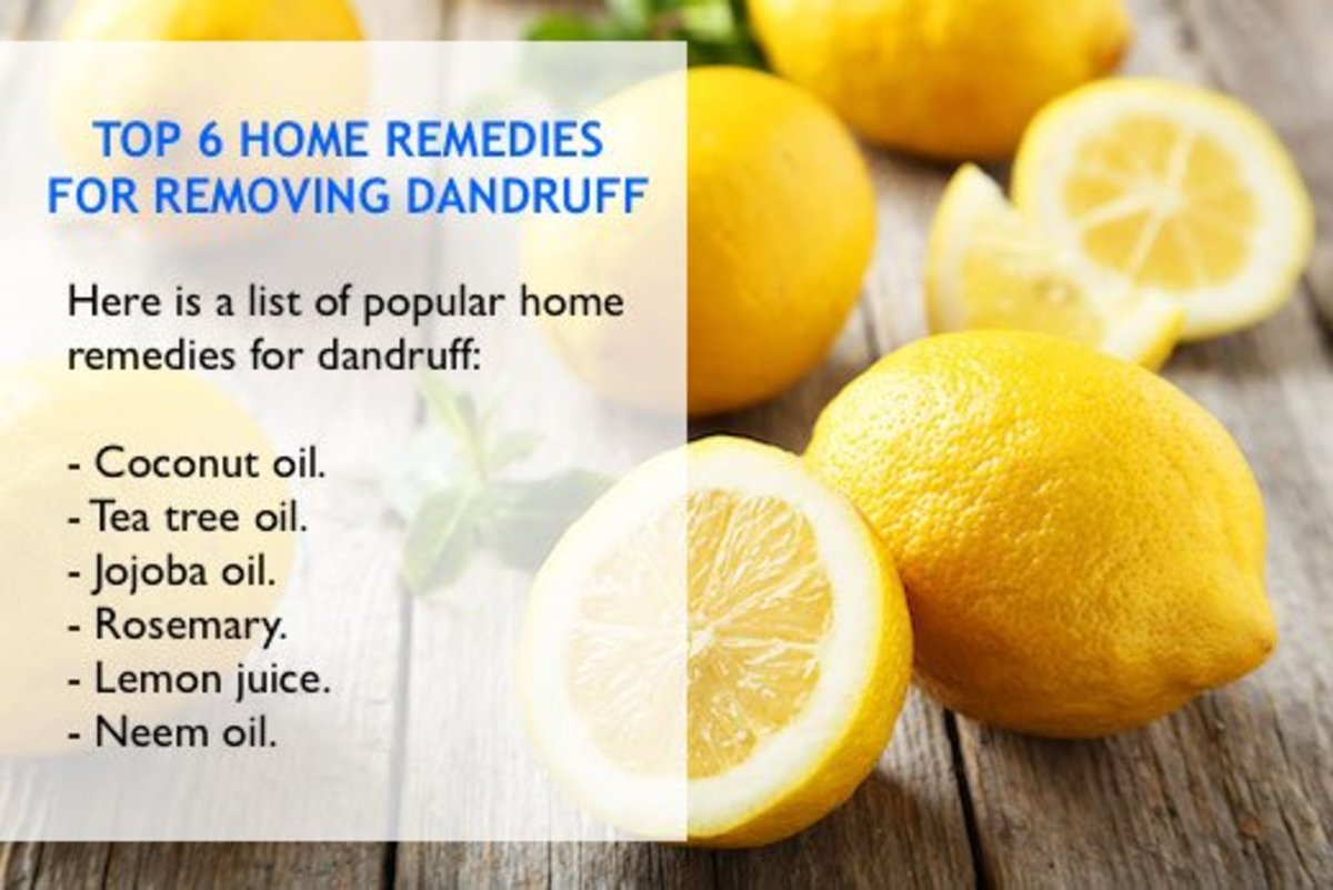 There are various anti-dandruff products from a number of suppliers. But, if you are a fan of home remedies, effective natural ingredients are available.
