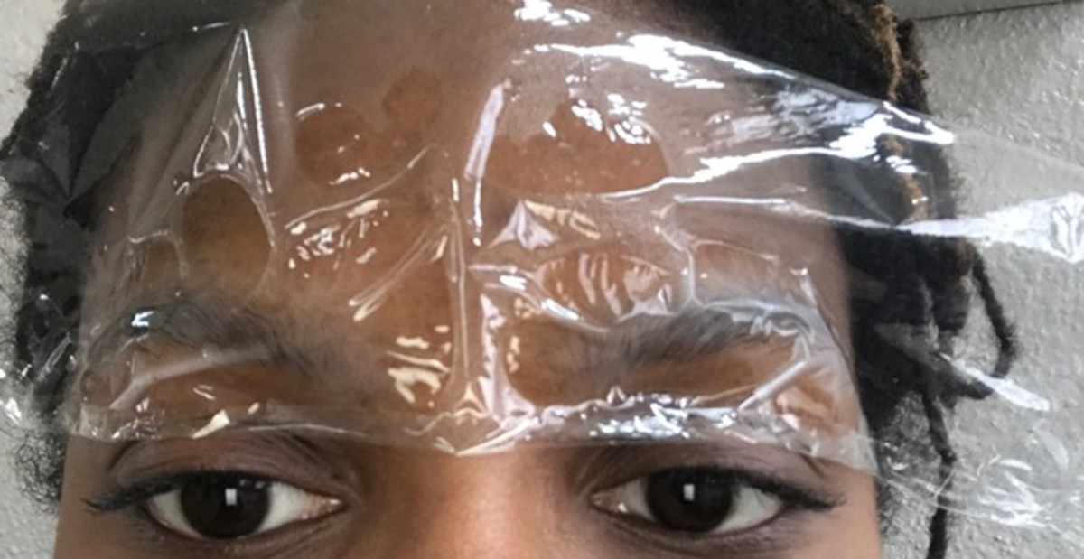 Step 4: Eyebrows covered in topical lidocaine