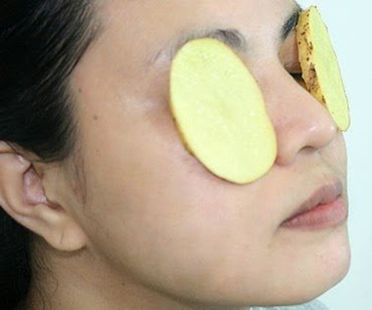 Cures for Dark Circles Under Your Eyes | Bellatory