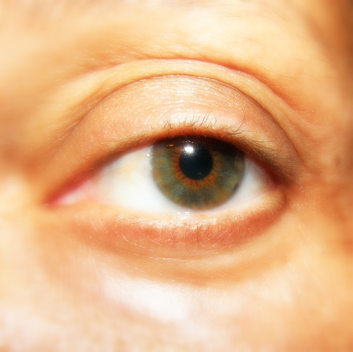 Author's natural eye.  I started to lose my eyelashes due to illness. I really needed some help, as regular mascara did nothing.