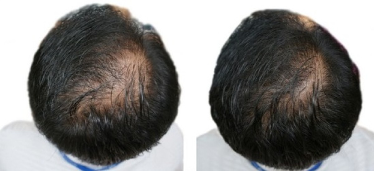 Results after 24 weeks of using Pumpkin Oil topically on scalp