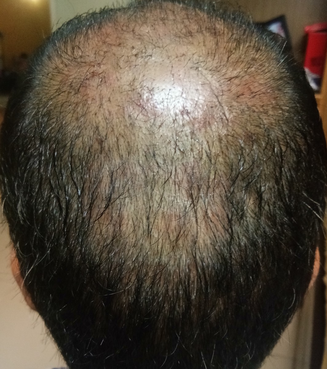 Vertex Area - After PRP treatment