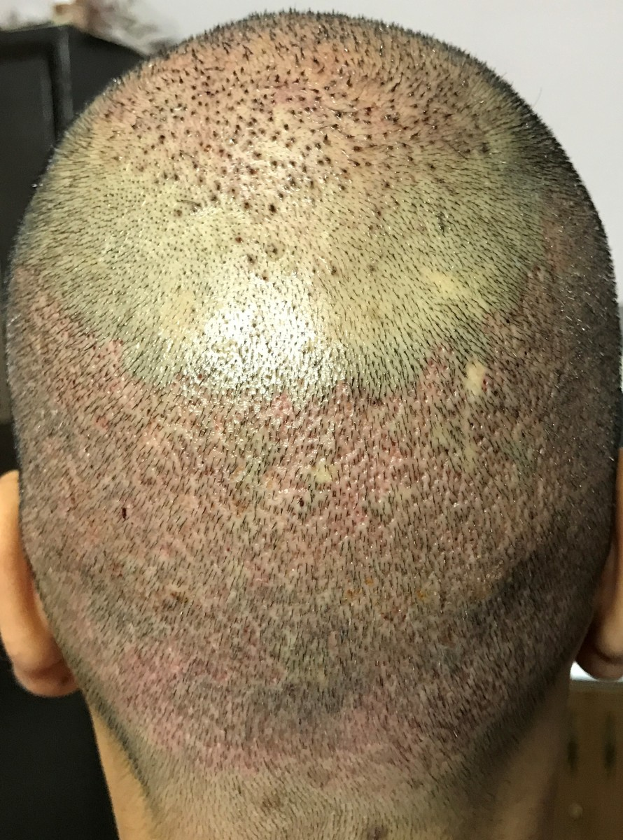 This is how the back of the head will look once the plaster is removed. As you can see it looks reddish in appearance and should look better as the days progress