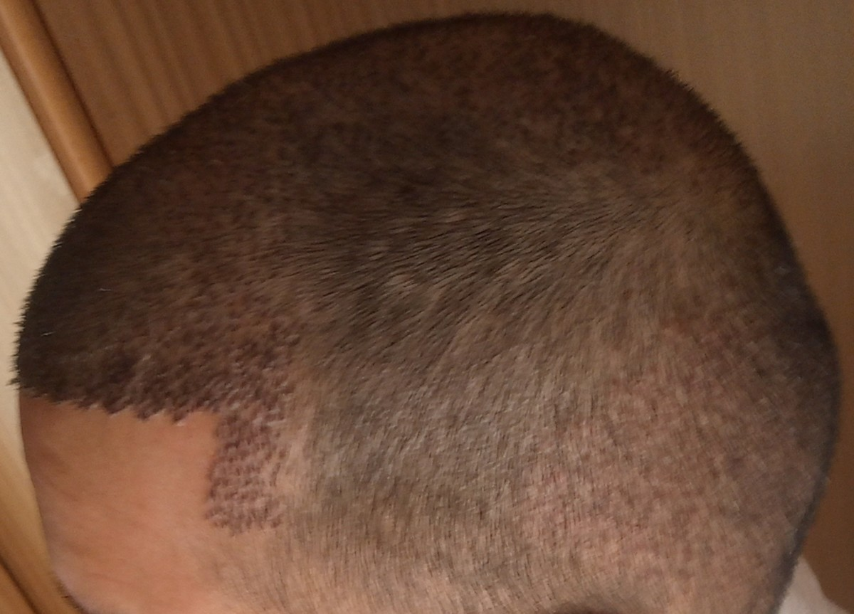 My frontal / temporal region, thats the only place where it is still obviously visible that i underwent a hair transplant