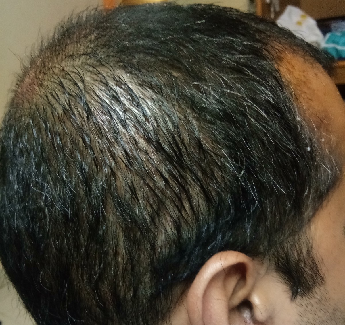 Side area - after PRP treatment