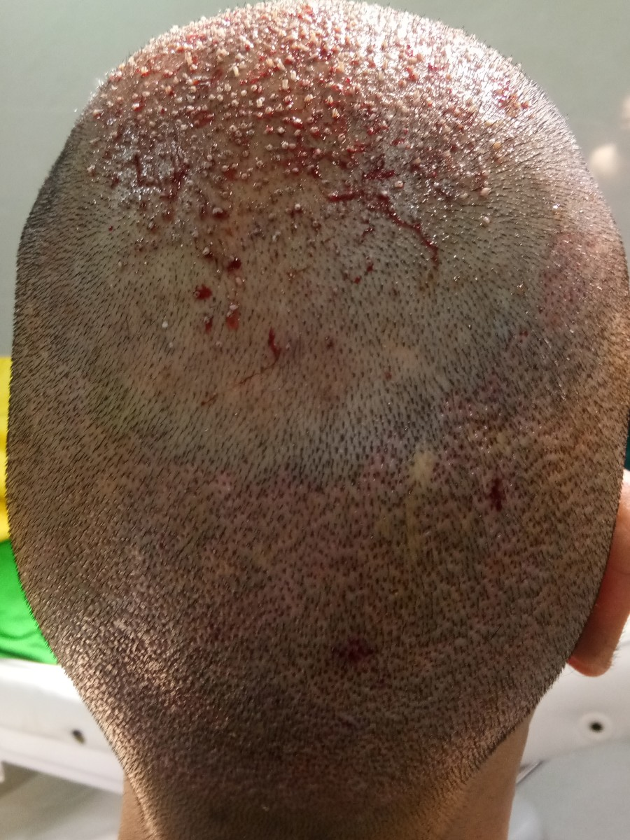 Vertex area post hair transplant