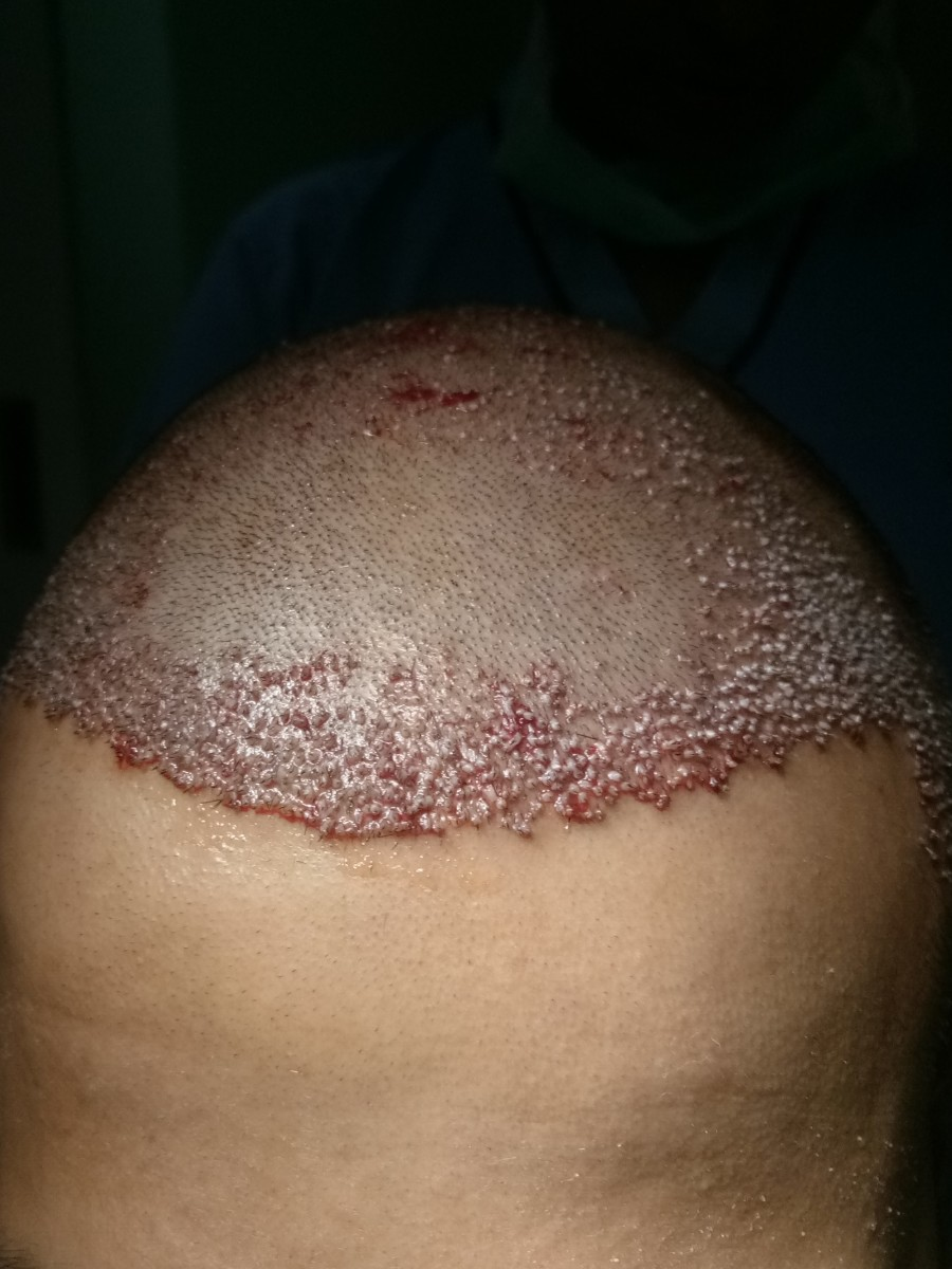 Frontal area post hair transplant