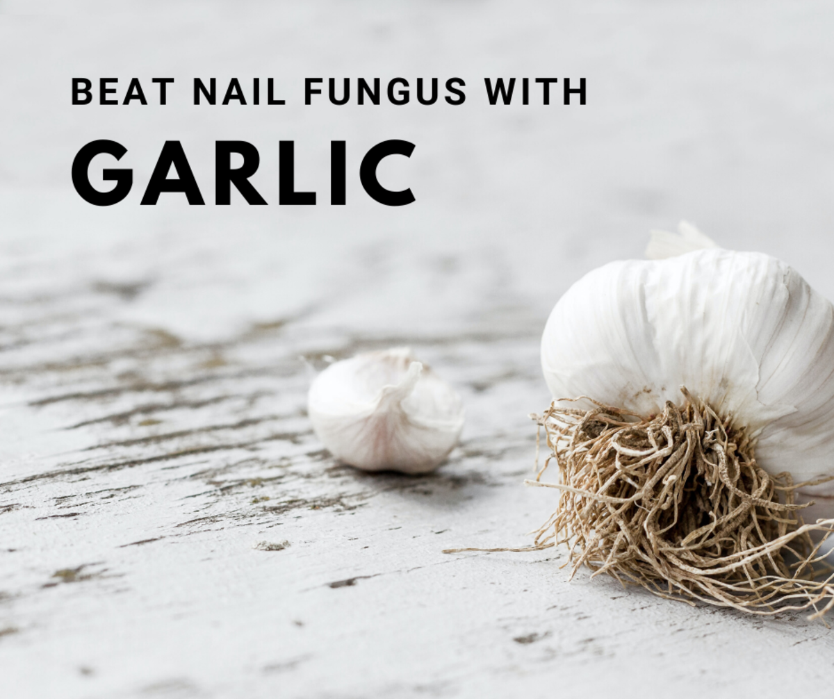 Garlic can fight nail fungus by being applied directly to the affected nail.