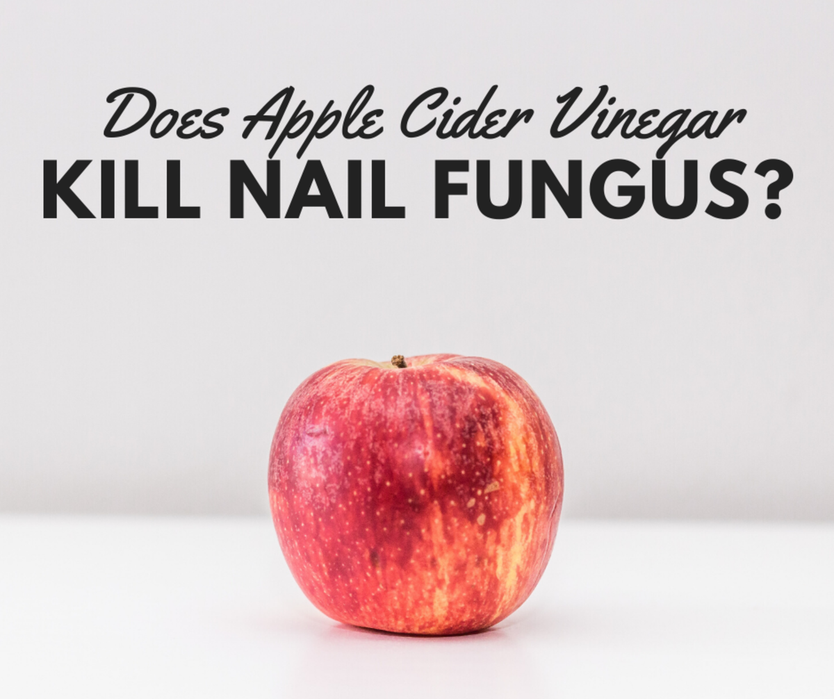 Banish nail fungus with ACV!