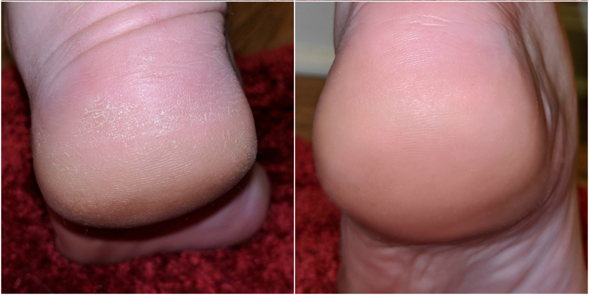 This step makes a seriously HUGE difference! See my before an after? My feet are smooth and feel great. Since there's no dry skin left, I don't feel like my skin catches on certain fabrics anymore.