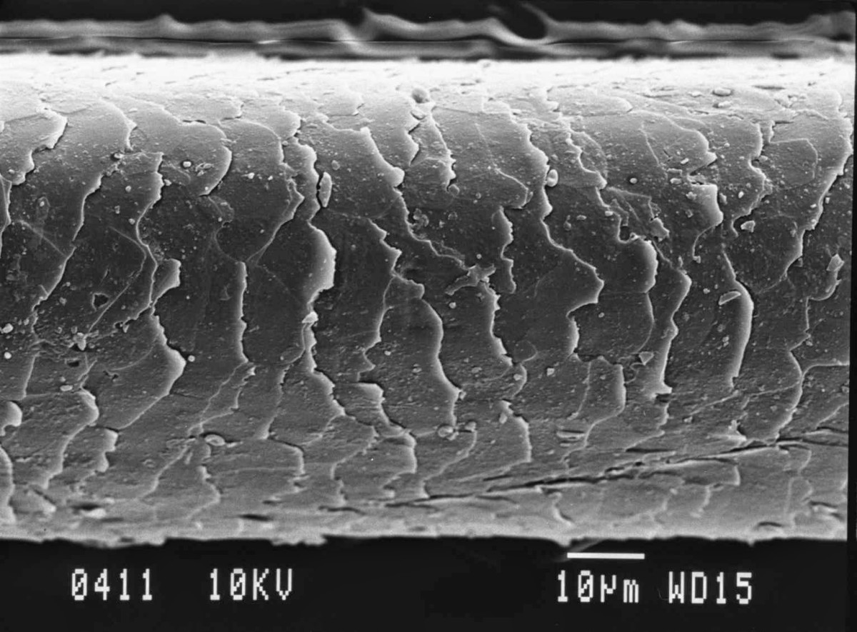 Hair strand under a microscope.