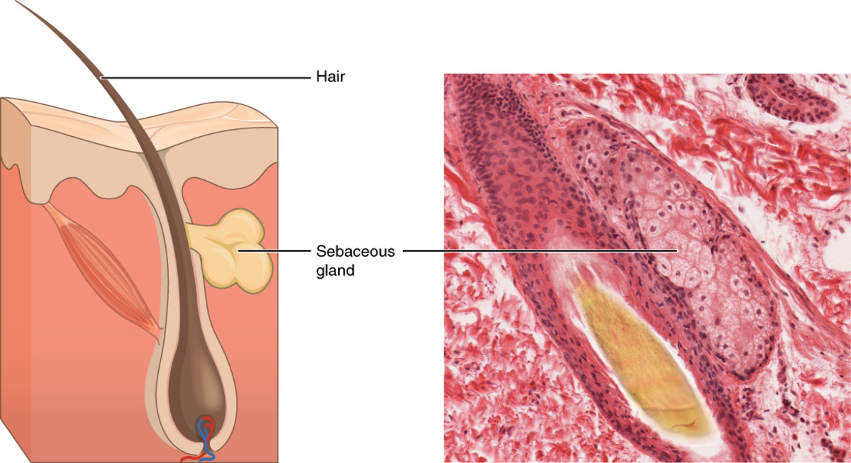 Left: Illustration of a Sebaceous Gland Right: Picture of a Sebaceous Gland