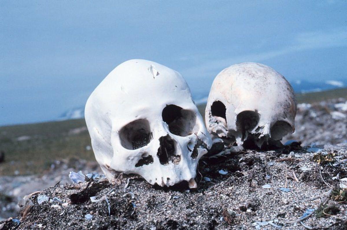 Bones often offer excellent evidence.
