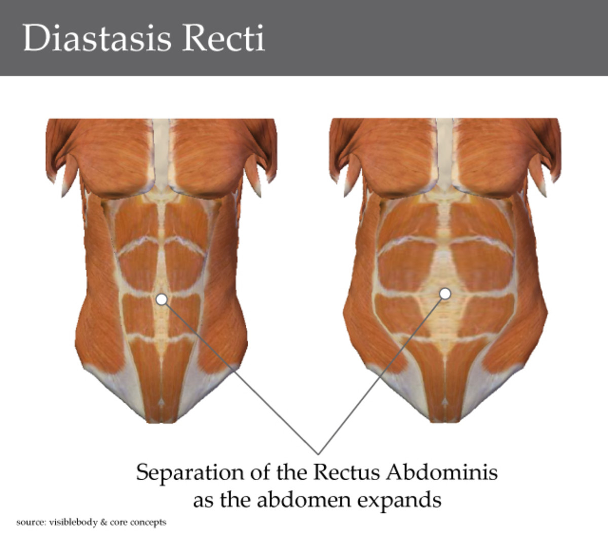 why-do-i-still-look-pregnant-the-411-on-diastasis-recti-aka-mummy-tummy