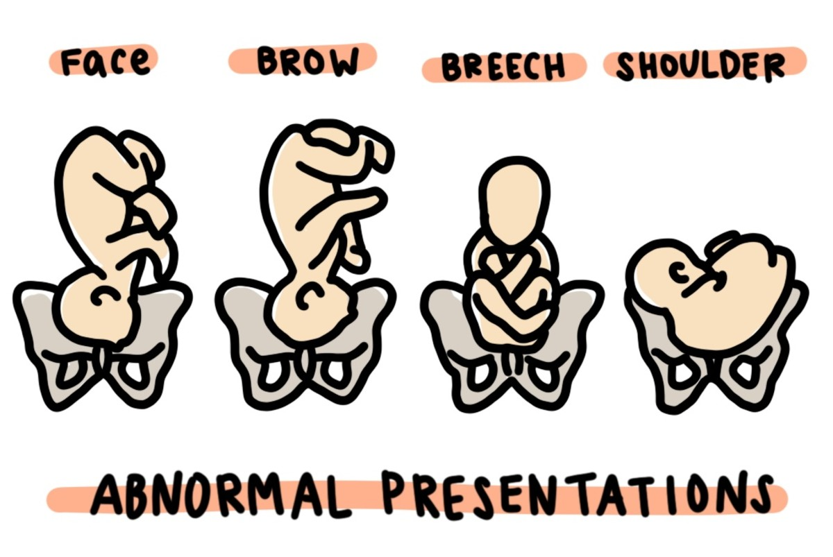 Abnormal Presentations