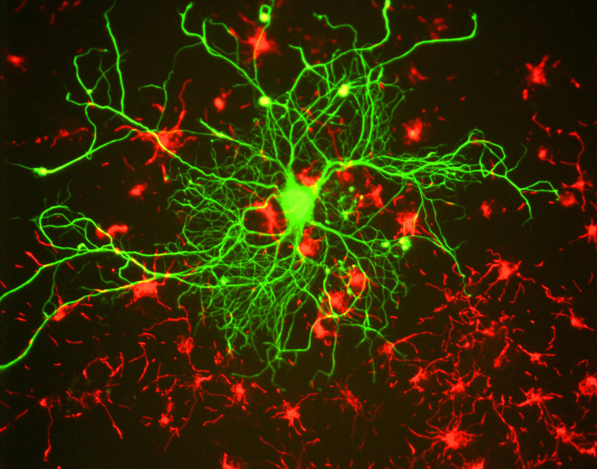Cortical neuron stained with antibody to neurofilament subunit NF-L in green. In red are neuronal stem cells stained with antibody to alpha-internexin.