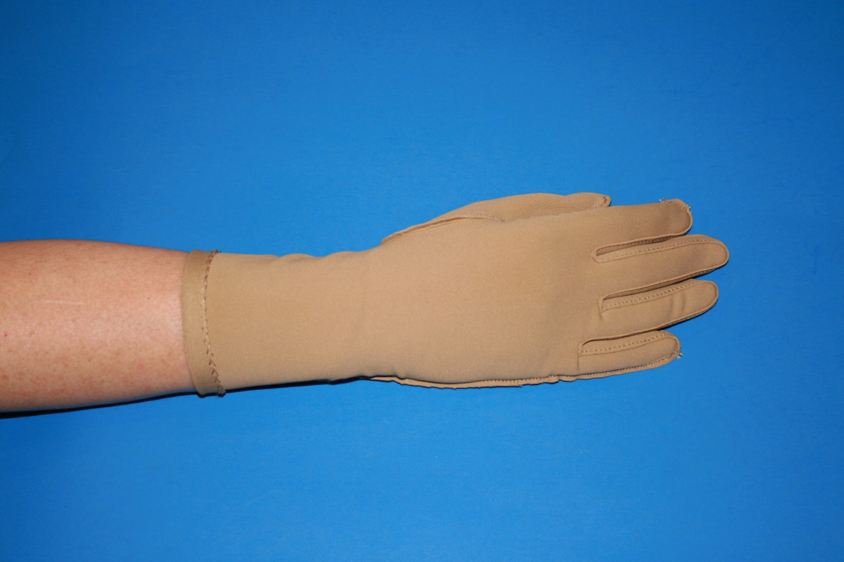 Most clients get signifcant relief of symptoms with compression gloves