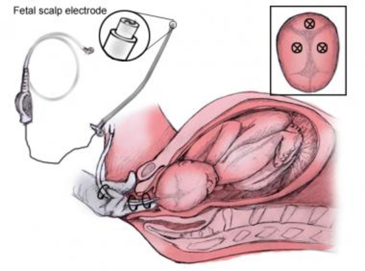 Fetal Scalp Electrode for directly measuring fetal heart-rate tracing in real-tine