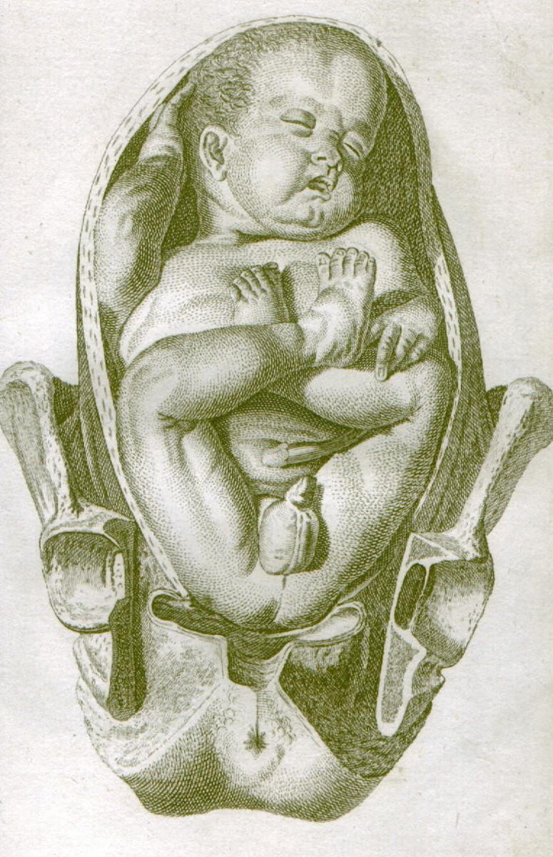 Baby shown in breech position.