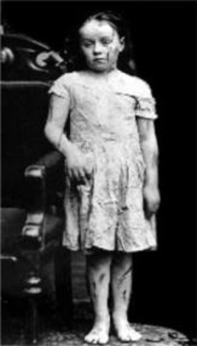 Mary Ellen Wilson—America's First Recognized Child Abuse Case