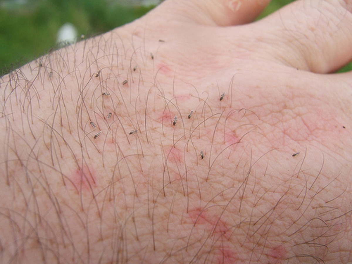 How to get rid of biting midges in the house