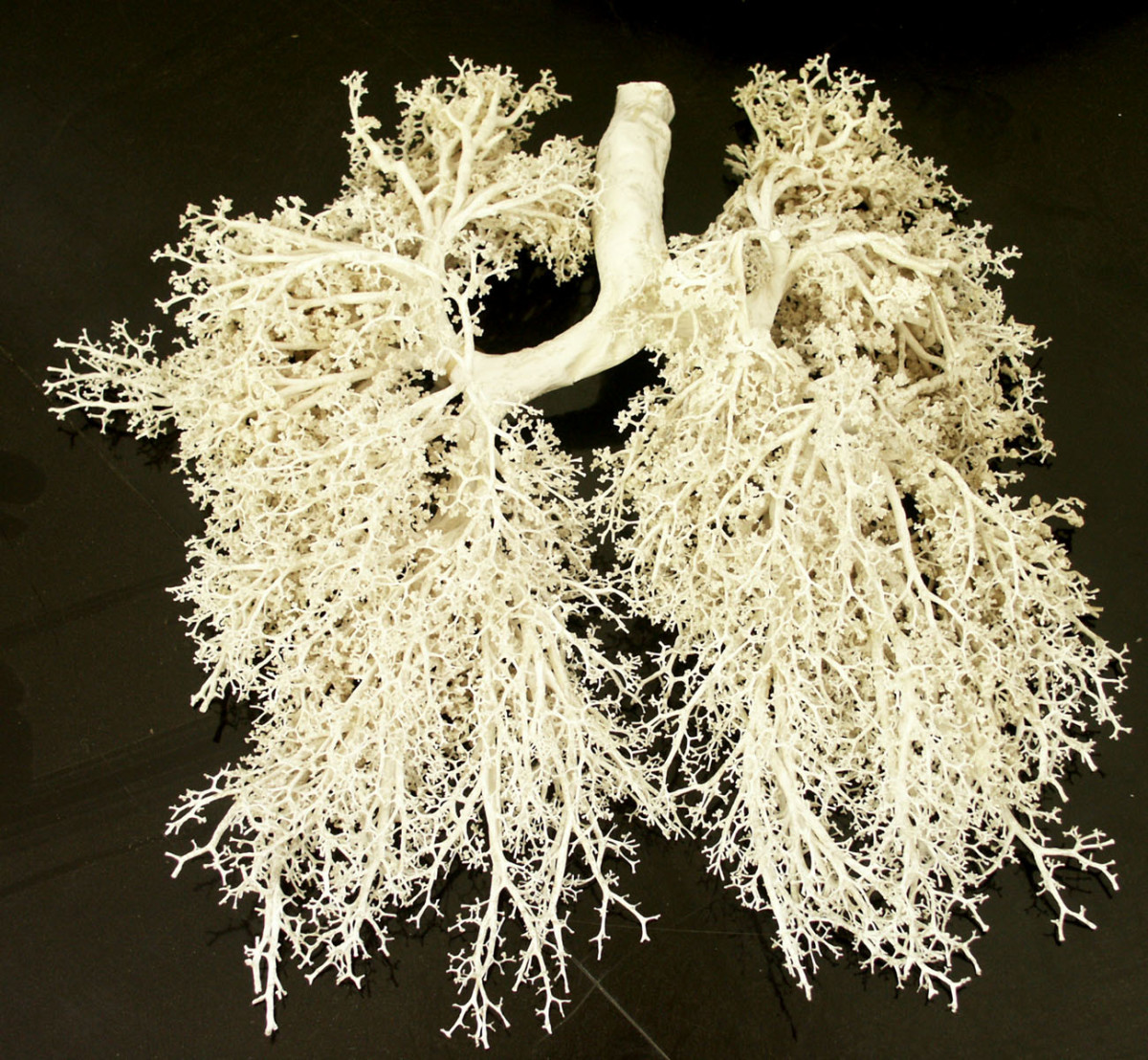 Plasticized human trachea, bronchi and bronchioles