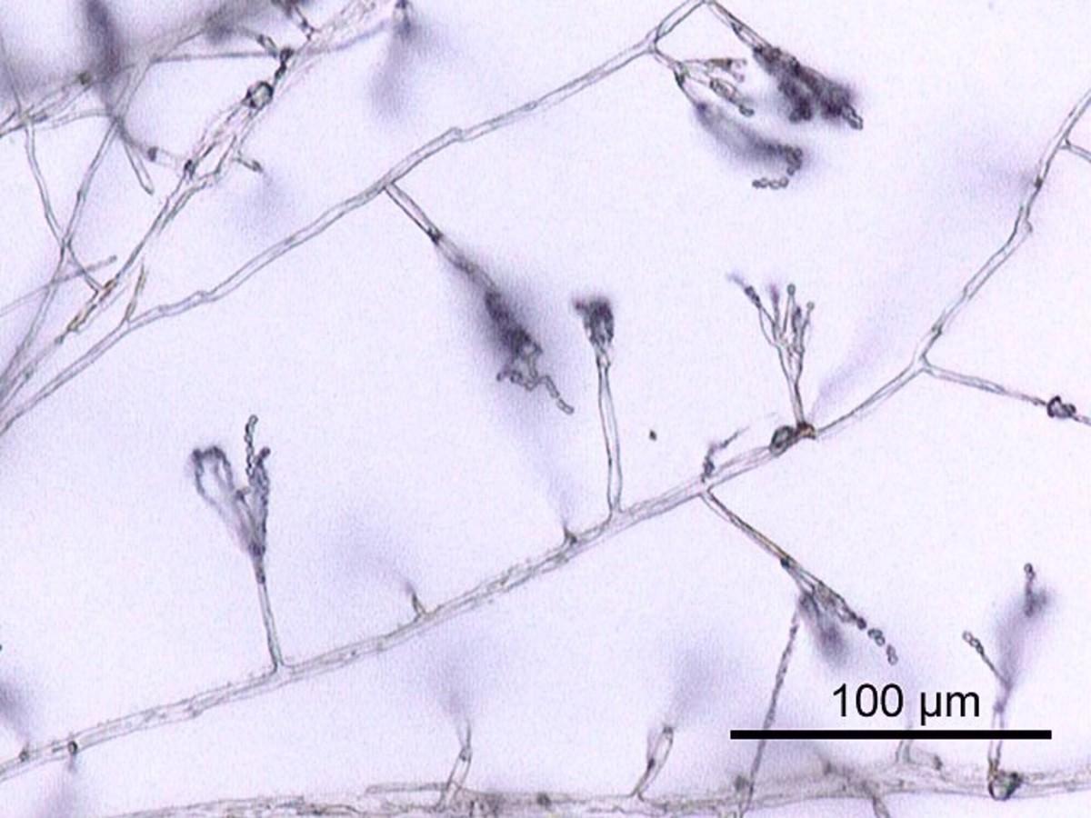 Penicillium is a mold that makes penicillin.