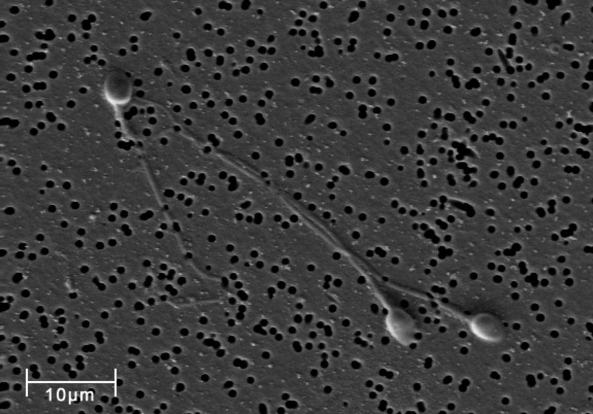 3 Human Sperm Cells