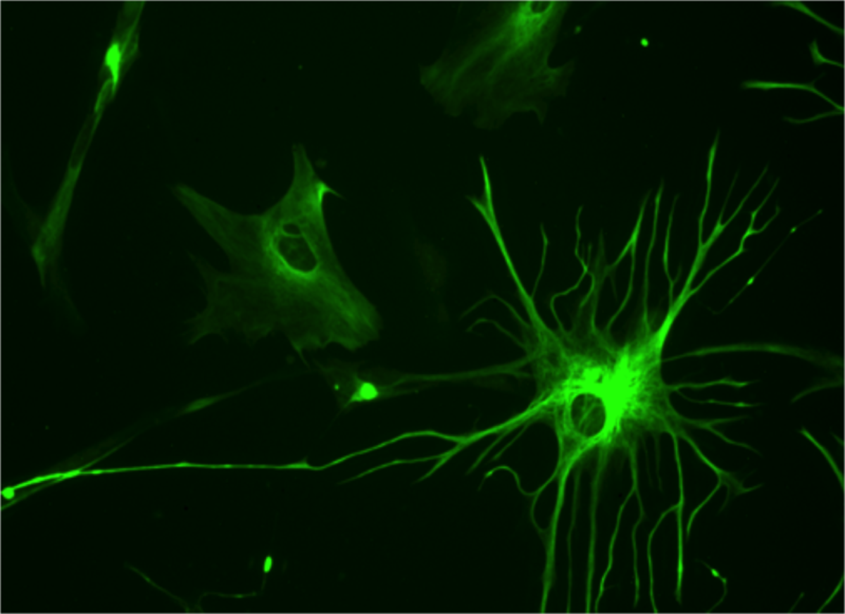 Stained astrocyte. These cells anchor neurons to their blood supply.