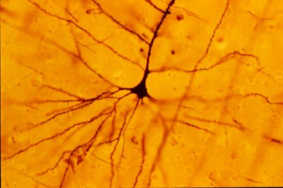 A human neocortical pyramidal neuron stained via Golgi technique