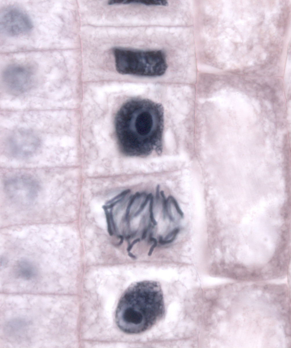 The upper-centre cell is in interphase (nucleus still visible); the lower cell is in late metaphase/early anaphase