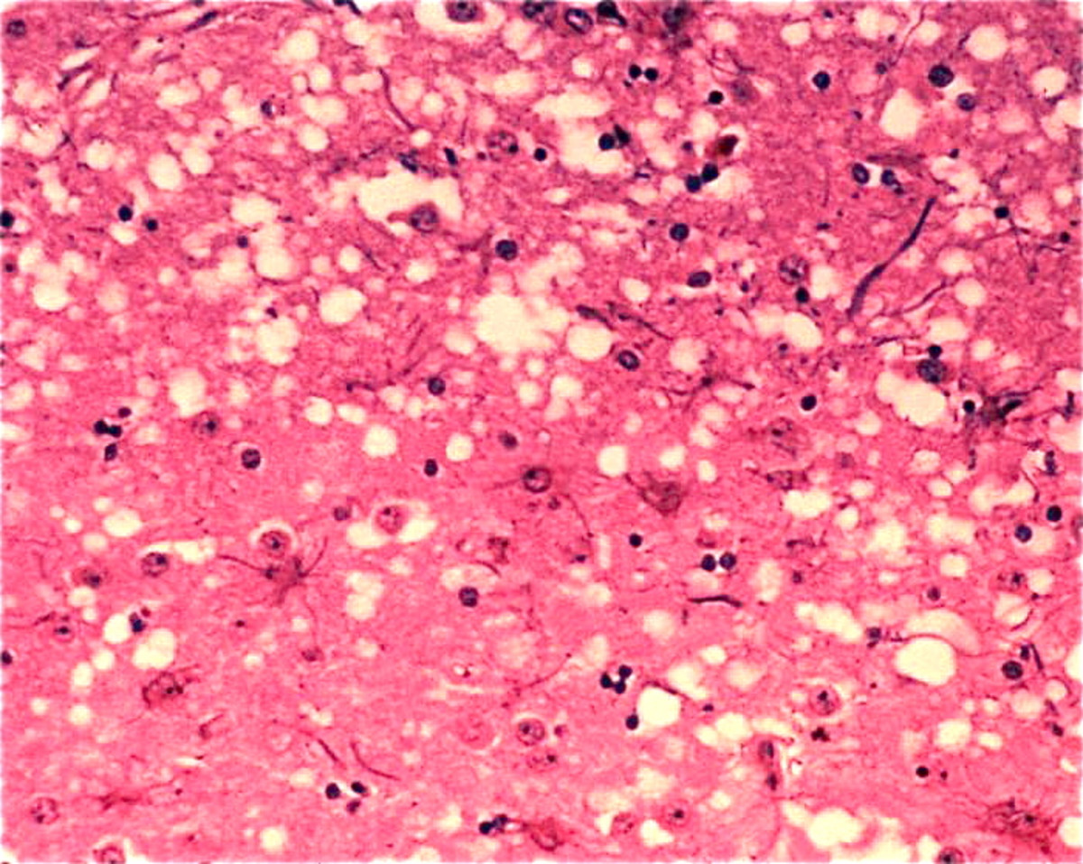 "The ""holes"" that are visible in the brain of a cow with BSE;  similar holes develop in a person with a TSE, or Transmissible Spongiform Encephalopathy"