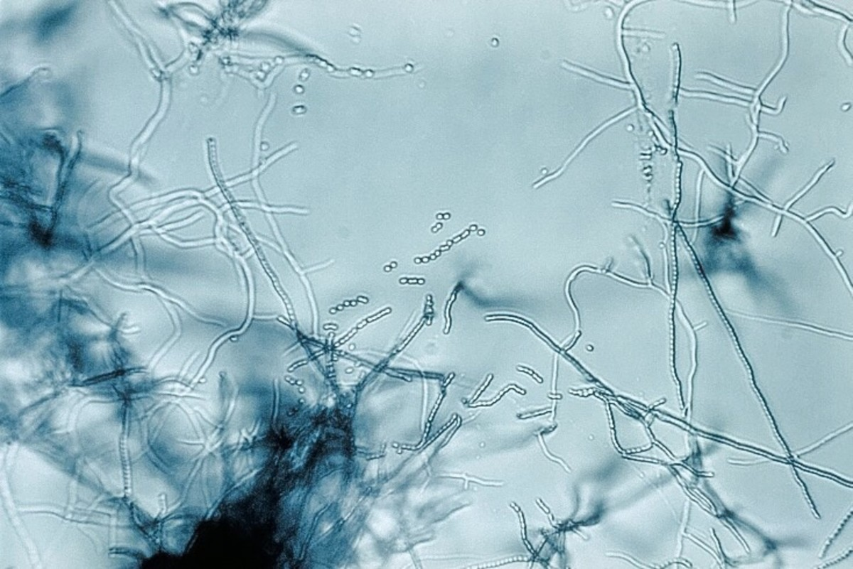A species of Streptomyces with branching filaments and chains of spores