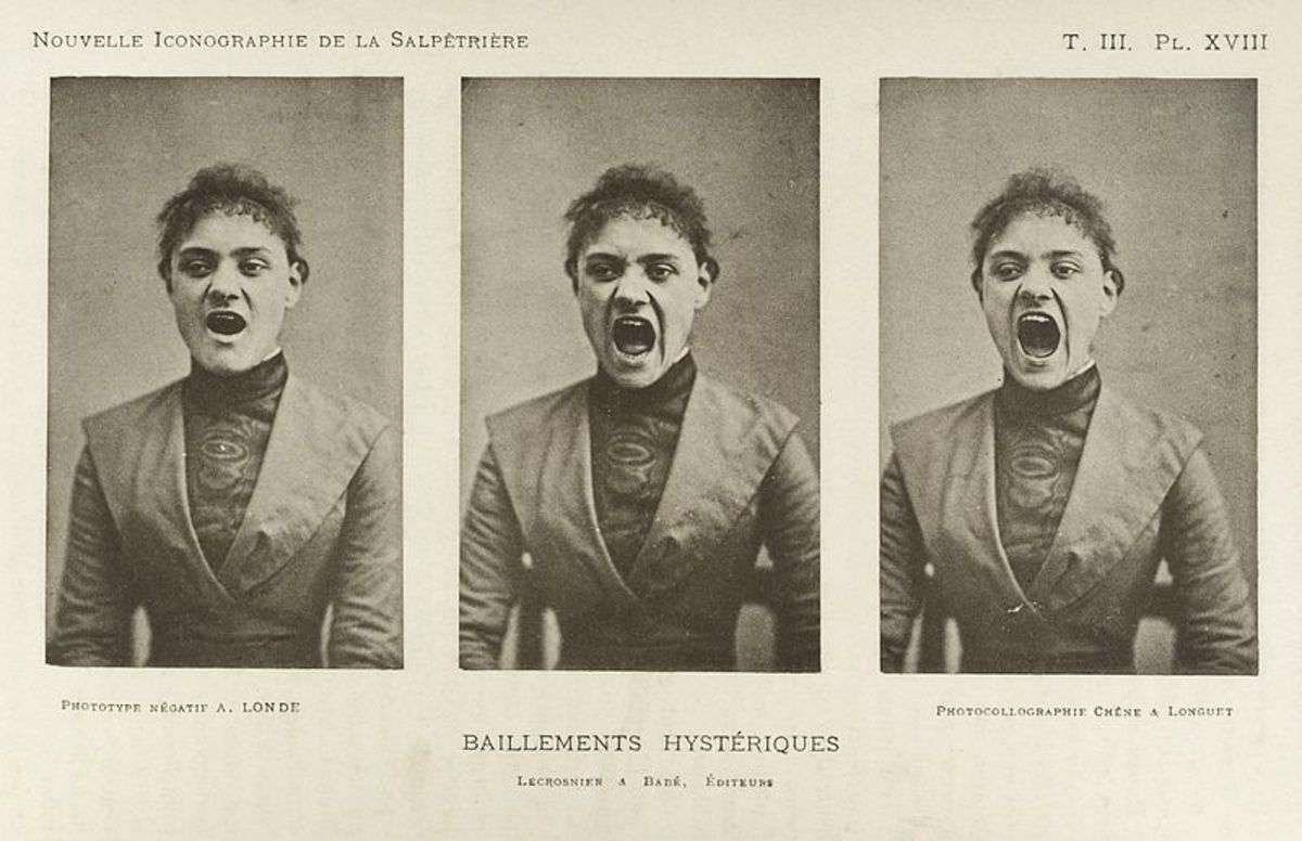 Hysteria is widely discussed in the medical literature of the Victorian era. In 1859, a physician claimed that a quarter of all women suffered from hysteria. He cataloged possible symptoms, which included faintness, nervousness, insomnia, fluid reten
