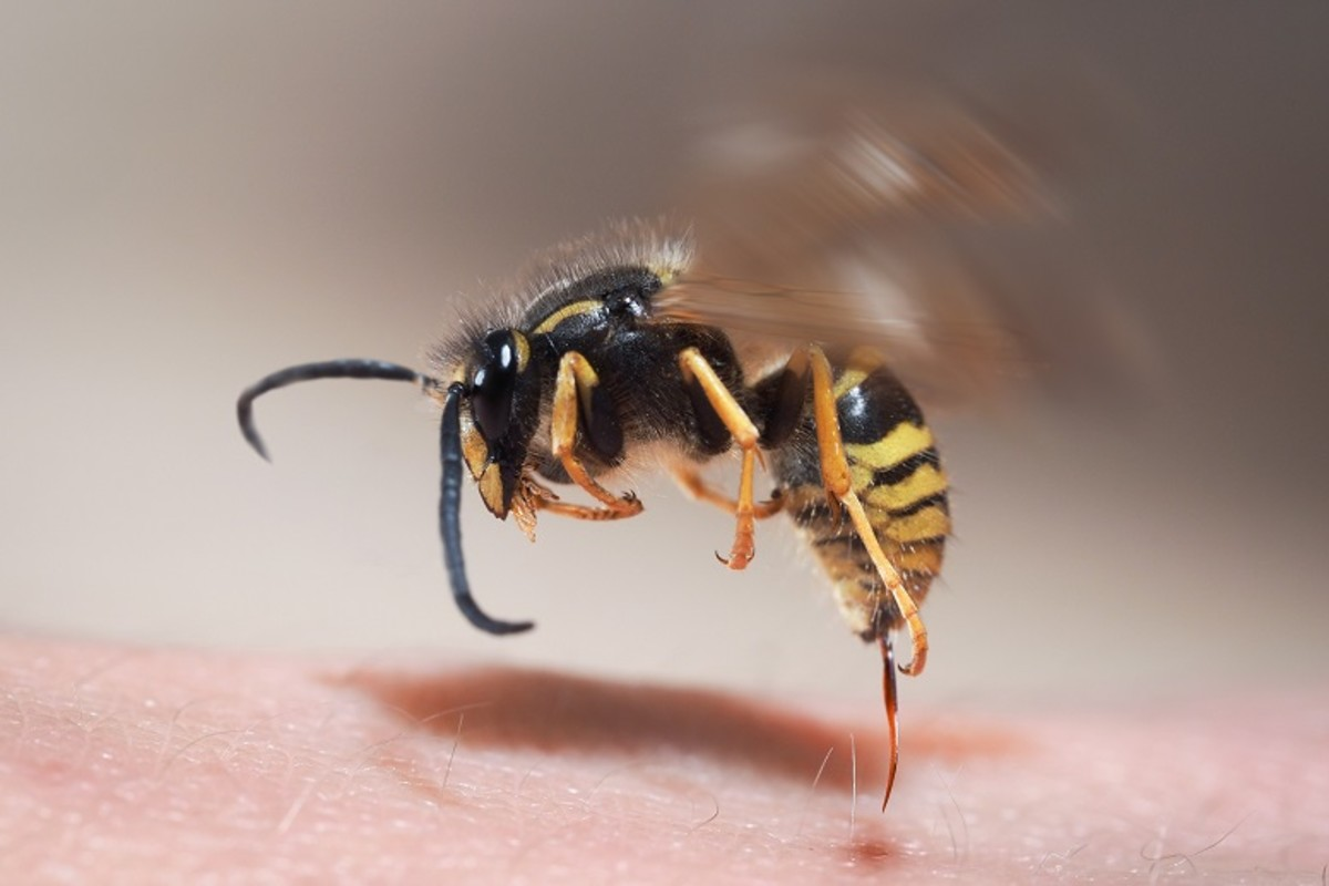 As you can see, this yellowjacket has already stung this person and its stinger is still intact.  They are capable of stinking many times, unlike the honey bee, which dies after the first (and only time) it stings.