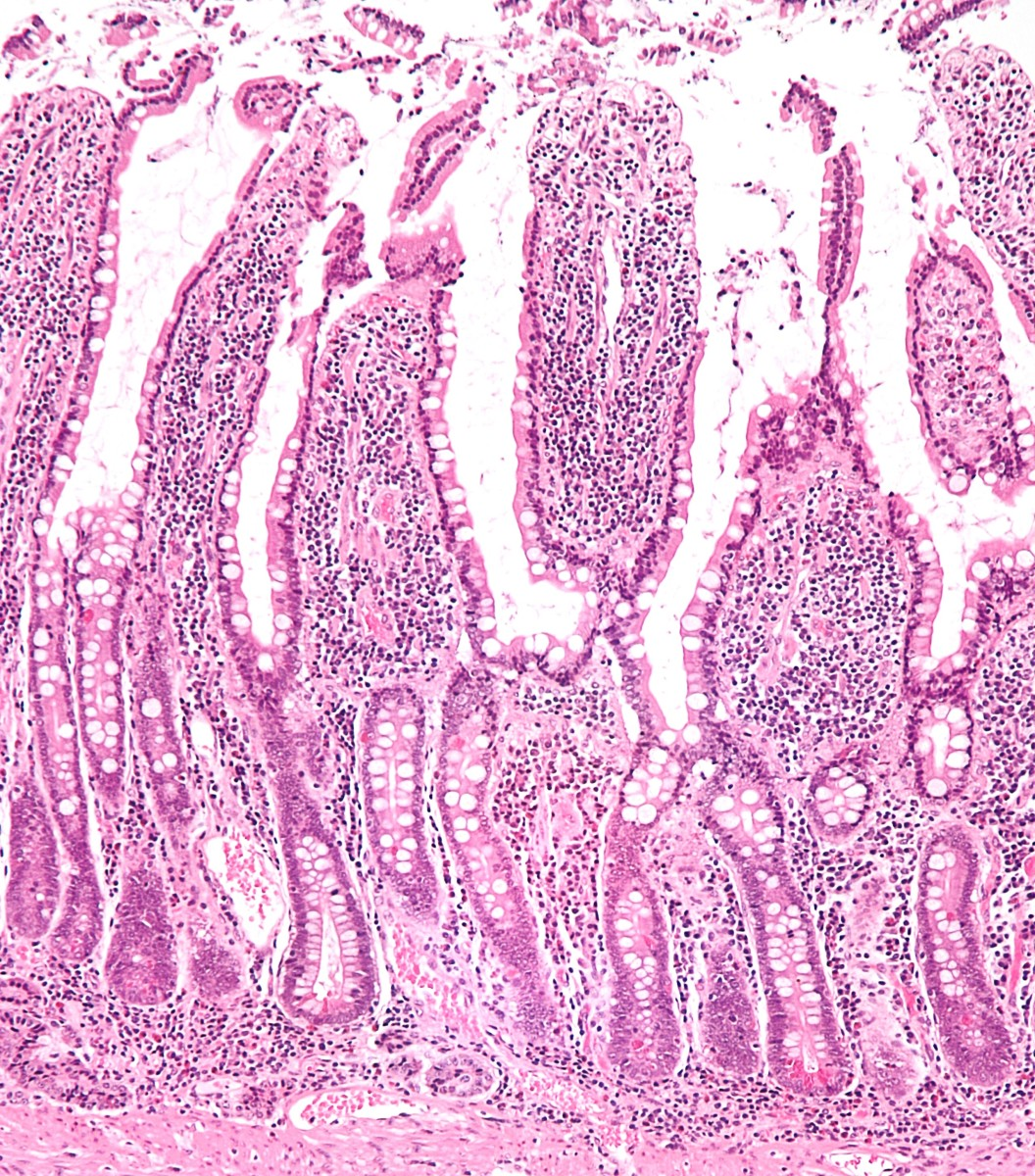A section of the small intestine lining that has been stained and magnified