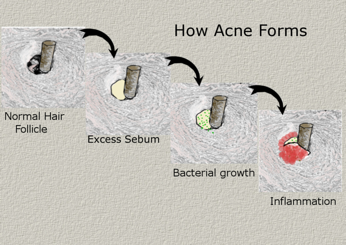Acne is formed as excess sebum is produced and trapped. Bacteria multiplies in the oxygen-deprived environment and inflammation occurs as the immune system is triggered to respond to the infection.