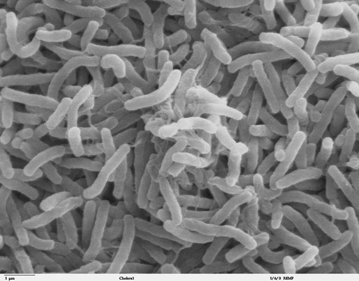 A scanning electron microscope image (SEM) of cholera bacteria. Bacterial respiration often breaks down glucose molecules to produce methane