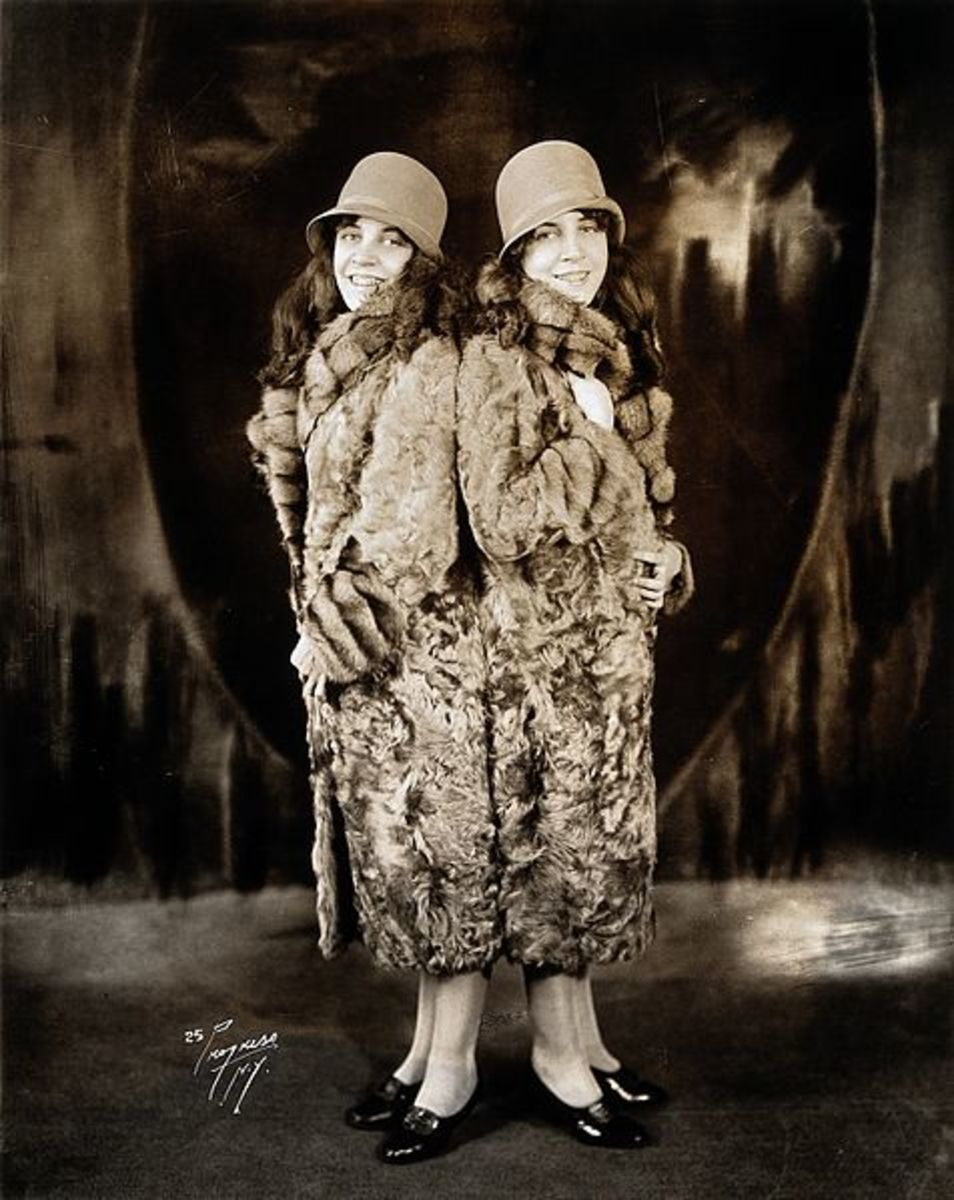Ohio Sideshow Performers: Daisy and Violet Hilton, adult conjoined twins in 1927.
