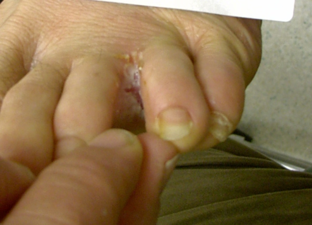 The symptoms of athlete's foot are caused by the Trichophyton fungus.