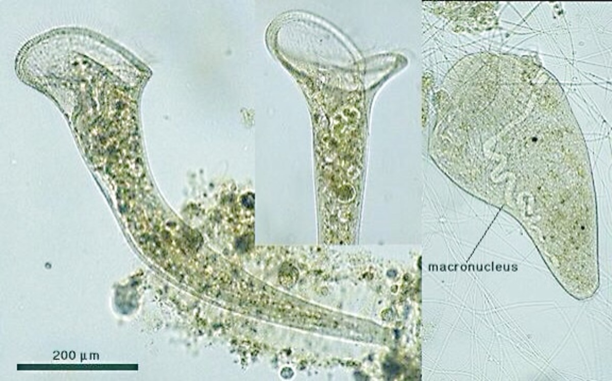 Stentor, a microscopic pond creature, as seen under a microscope