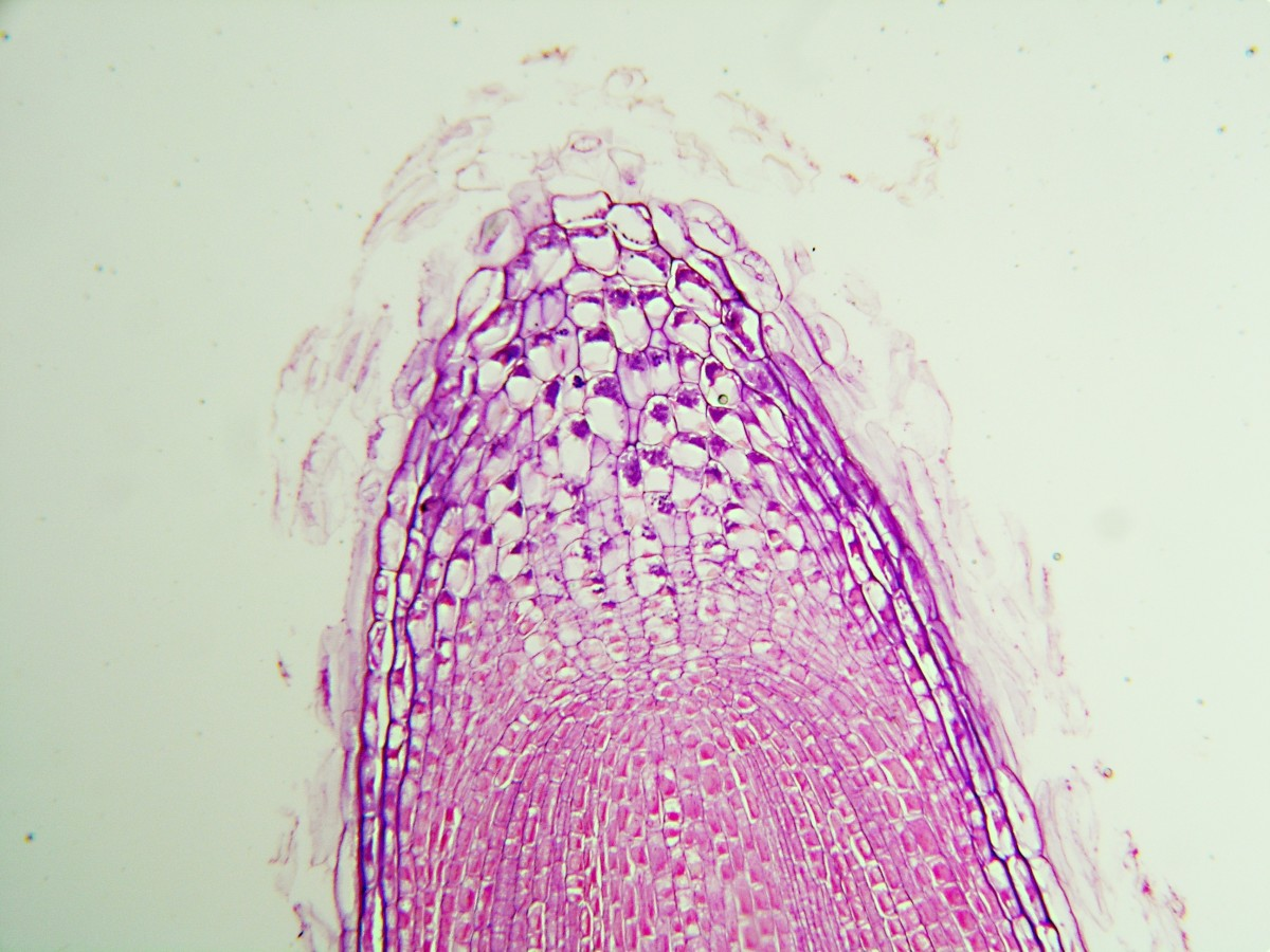 Stained cells of a root tip